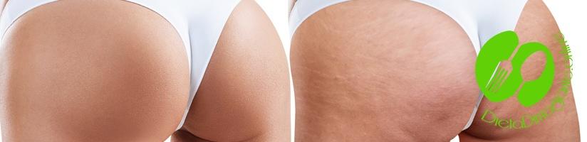 Cellulite: cos'è e come eliminarla?